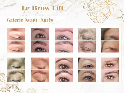 Galerie Photo Brow Lift